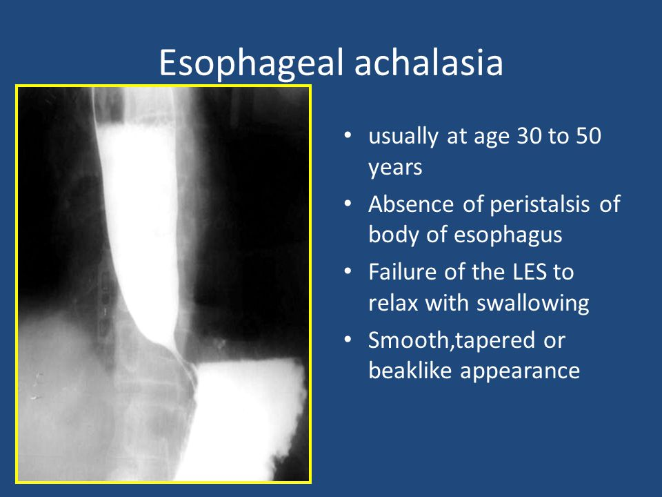 Esophageal achalasia usually at age 30 to 50 years