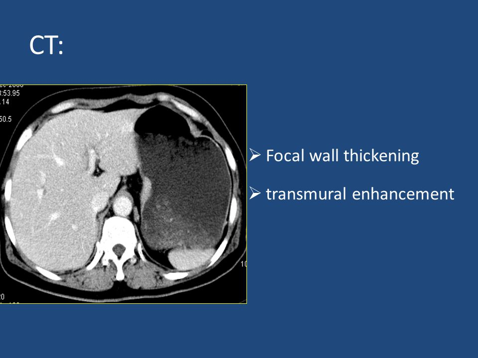 Radiology of digestive system ppt video online download for Diffuse mural thickening