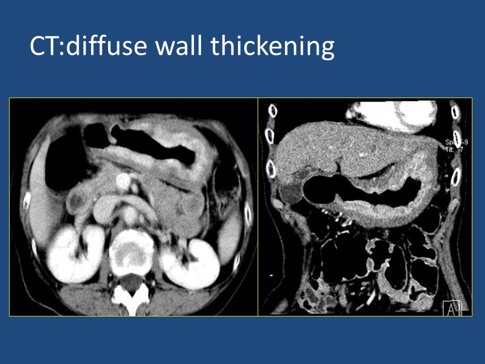 CT:diffuse wall thickening