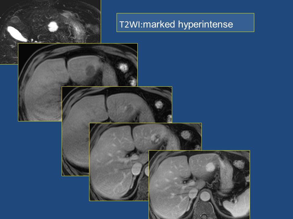T2WI:marked hyperintense