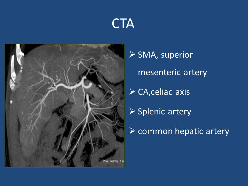 CTA SMA, superior mesenteric artery CA,celiac axis Splenic artery