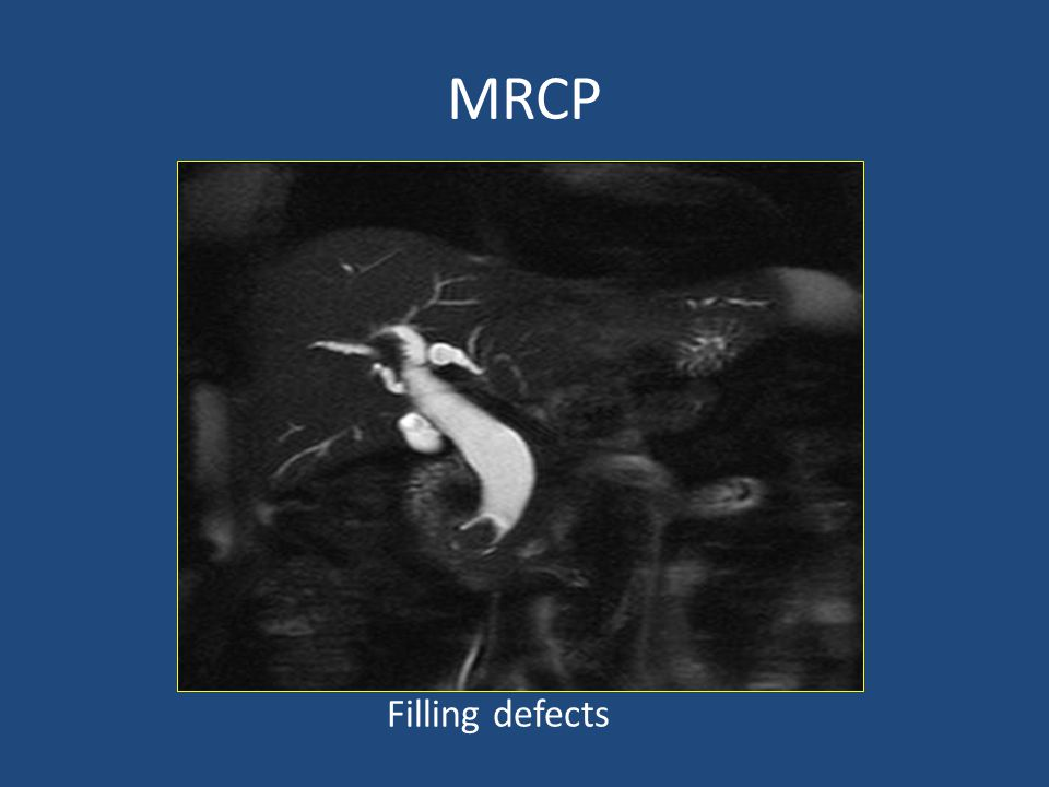 MRCP Filling defects