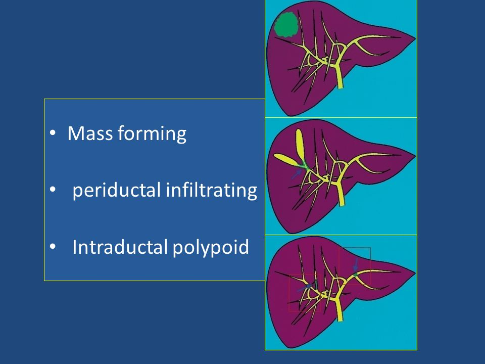 Mass forming periductal infiltrating Intraductal polypoid