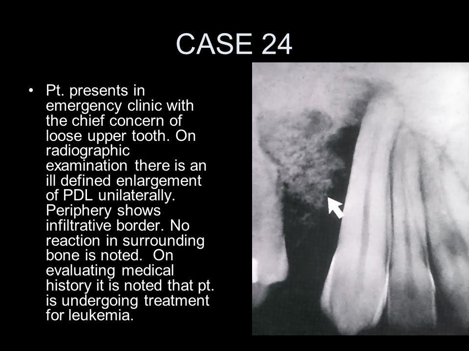 CASE 24