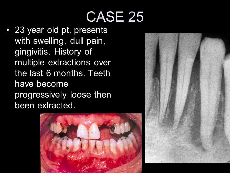 CASE 25