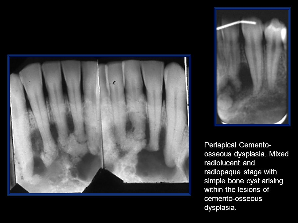 Periapical Cemento-osseous dysplasia. Mixed