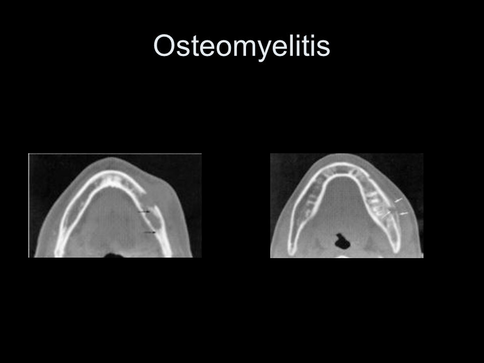 Osteomyelitis The axial section on the left shows sequestrum (area of necrotic bone) The axial image on the right shows periosteal reaction.