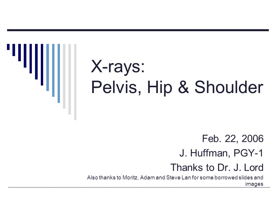 X-rays: Pelvis, Hip & Shoulder
