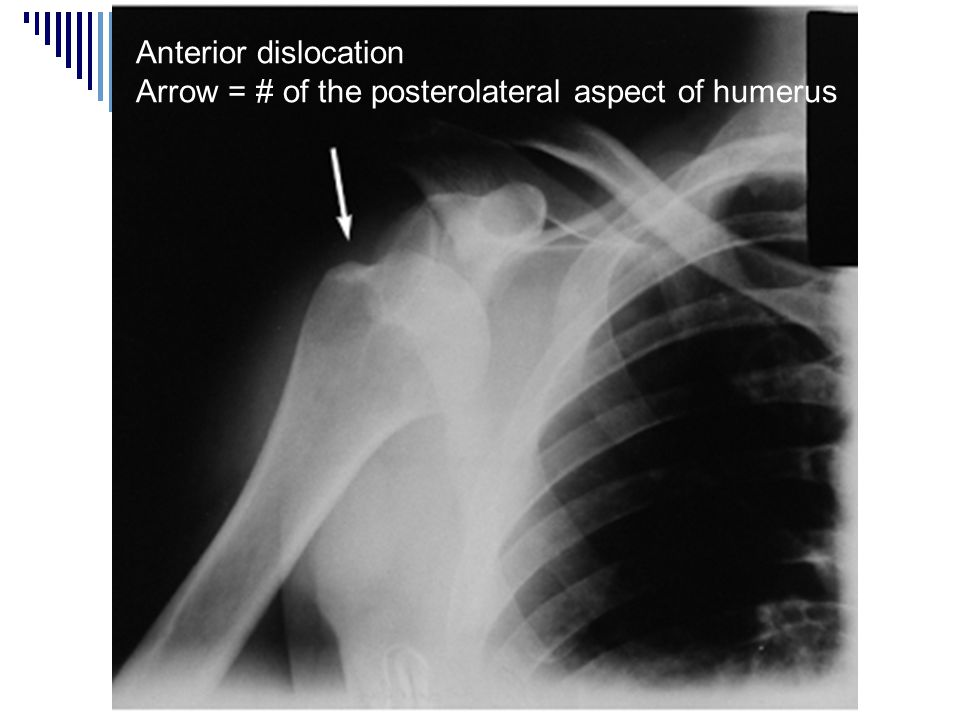 Anterior dislocation Arrow = # of the posterolateral aspect of humerus