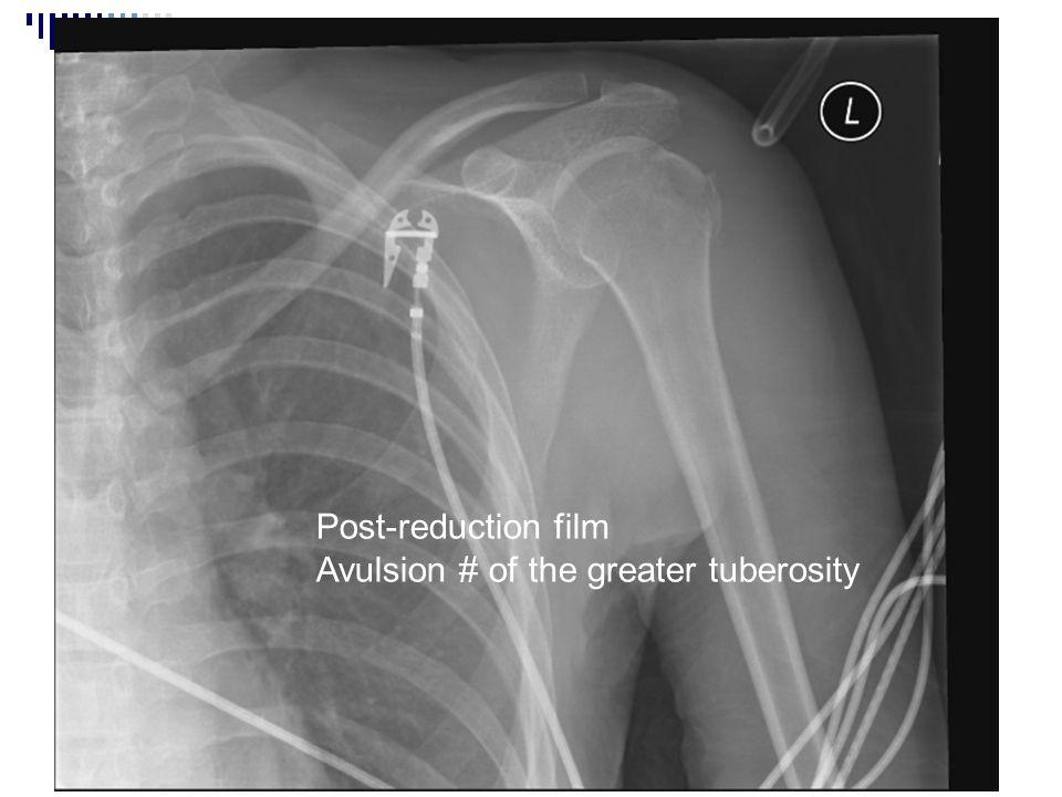 Post-reduction film Avulsion # of the greater tuberosity
