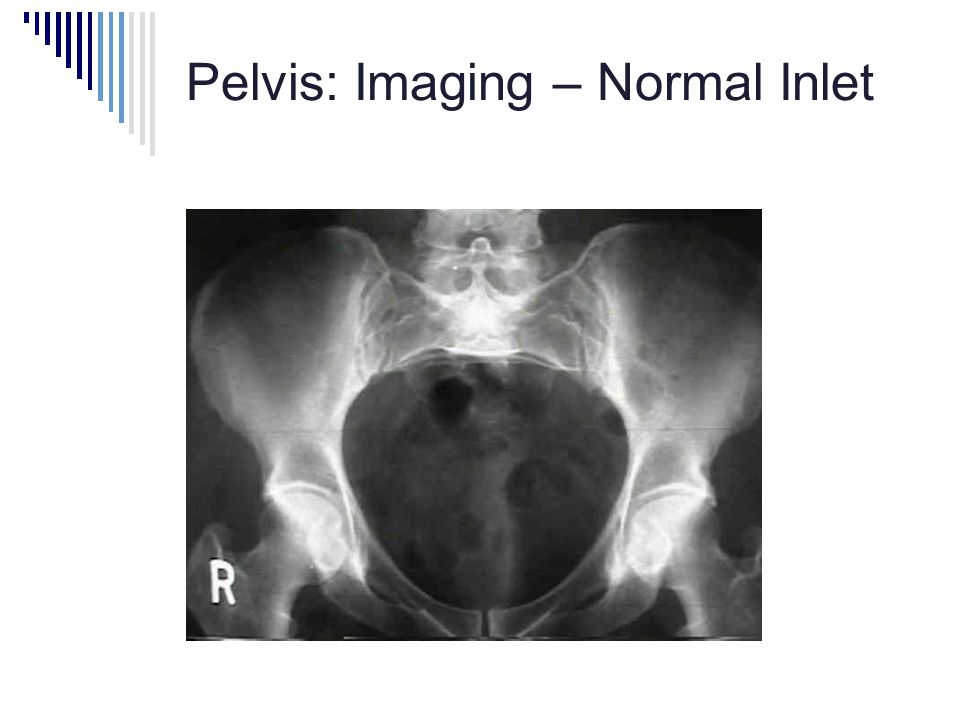 Pelvis: Imaging – Normal Inlet