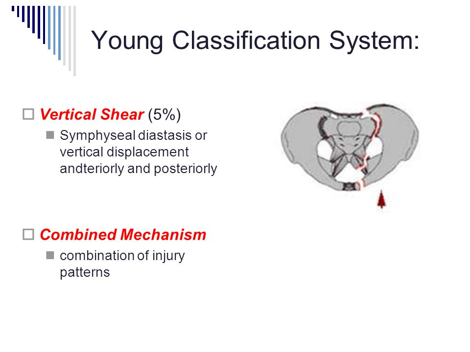 Young Classification System: