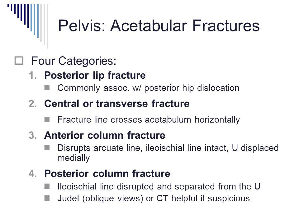 Pelvis: Acetabular Fractures