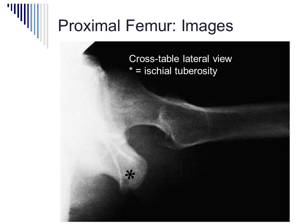 Proximal Femur: Images