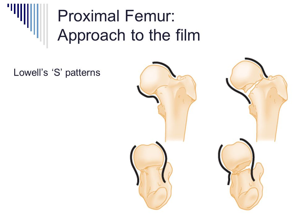 Proximal Femur: Approach to the film