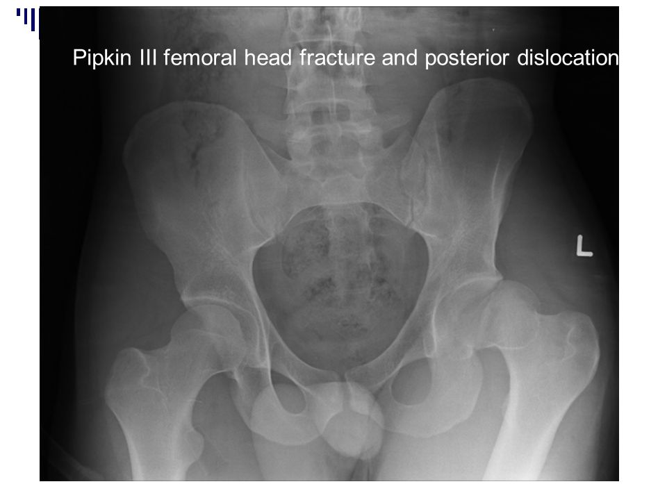 Pipkin III femoral head fracture and posterior dislocation
