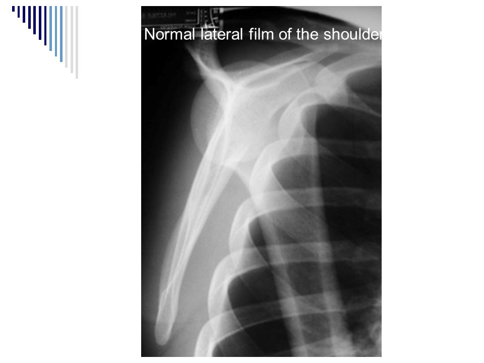Normal lateral film of the shoulder