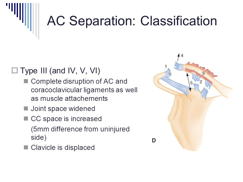 AC Separation: Classification