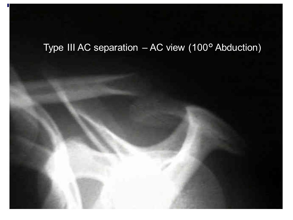 Type III AC separation – AC view (100° Abduction)