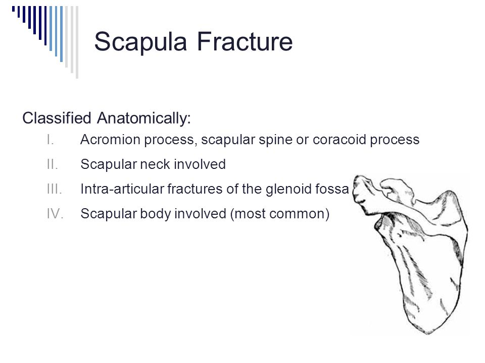 Scapula Fracture Classified Anatomically: