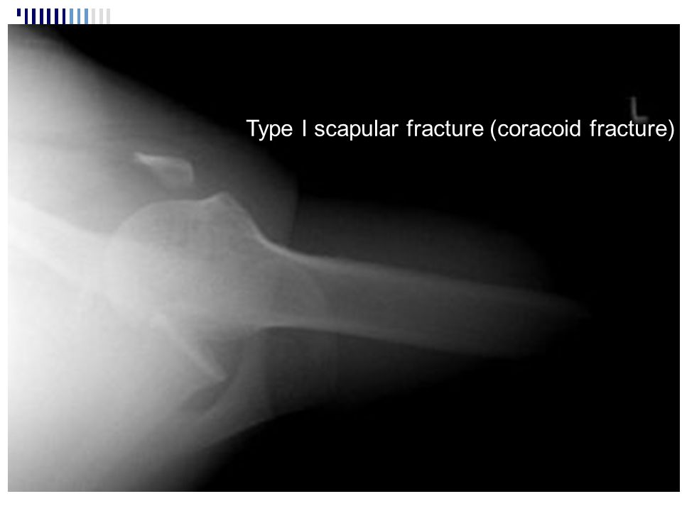 Type I scapular fracture (coracoid fracture)