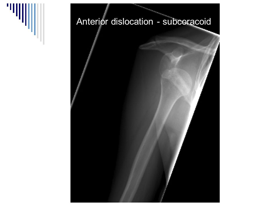 Anterior dislocation - subcoracoid