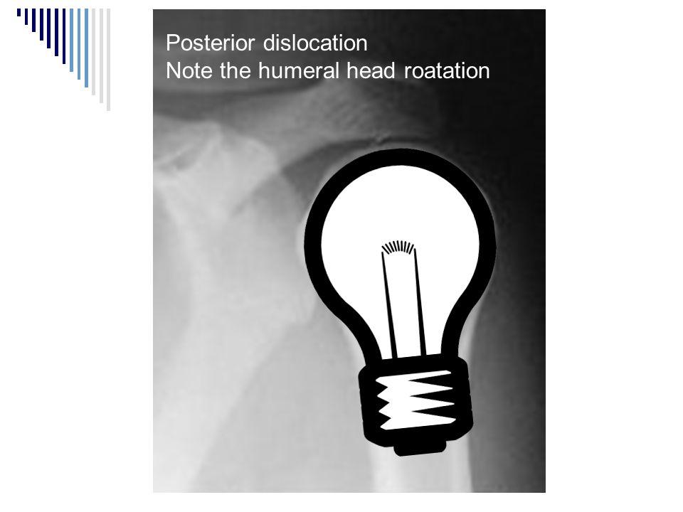 Posterior dislocation