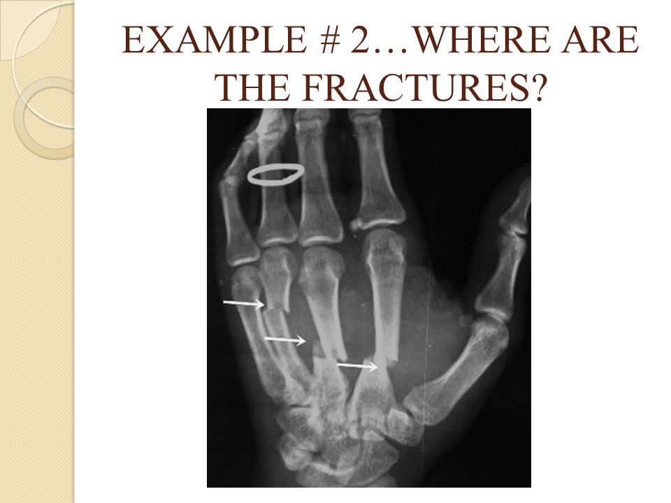 EXAMPLE # 2…WHERE ARE THE FRACTURES