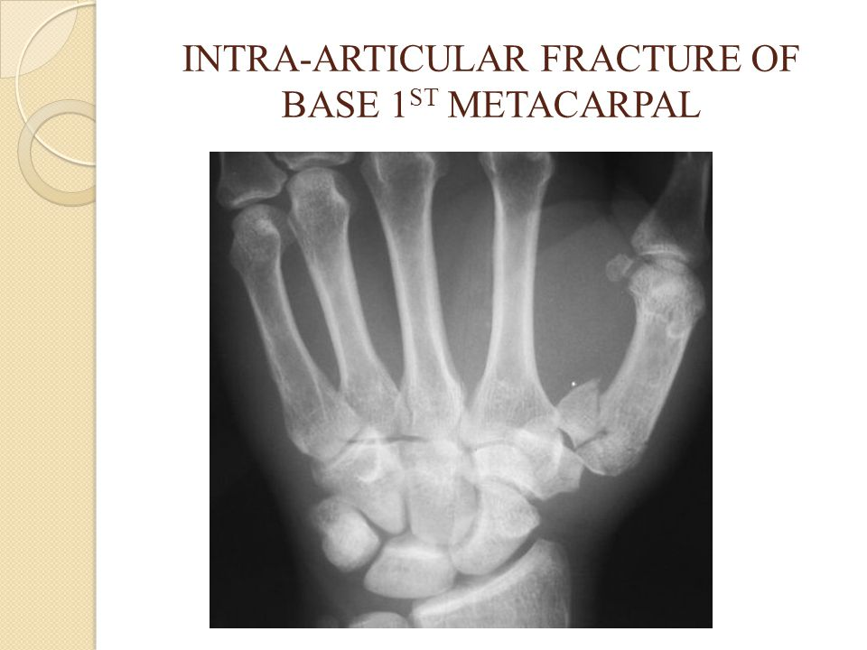 INTRA-ARTICULAR FRACTURE OF BASE 1ST METACARPAL