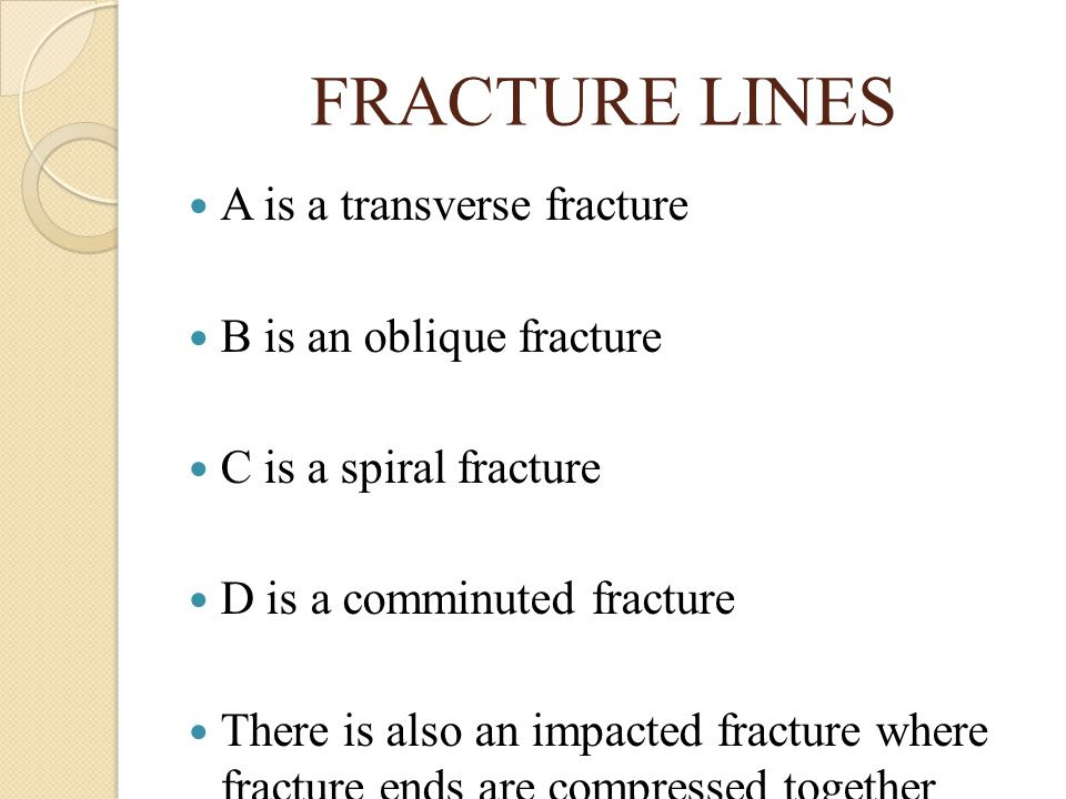 FRACTURE LINES A is a transverse fracture B is an oblique fracture
