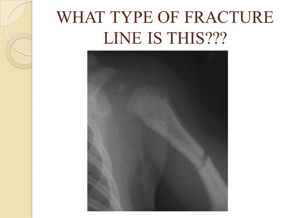 WHAT TYPE OF FRACTURE LINE IS THIS