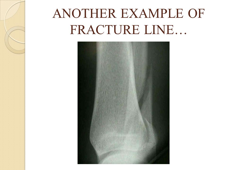 ANOTHER EXAMPLE OF FRACTURE LINE…