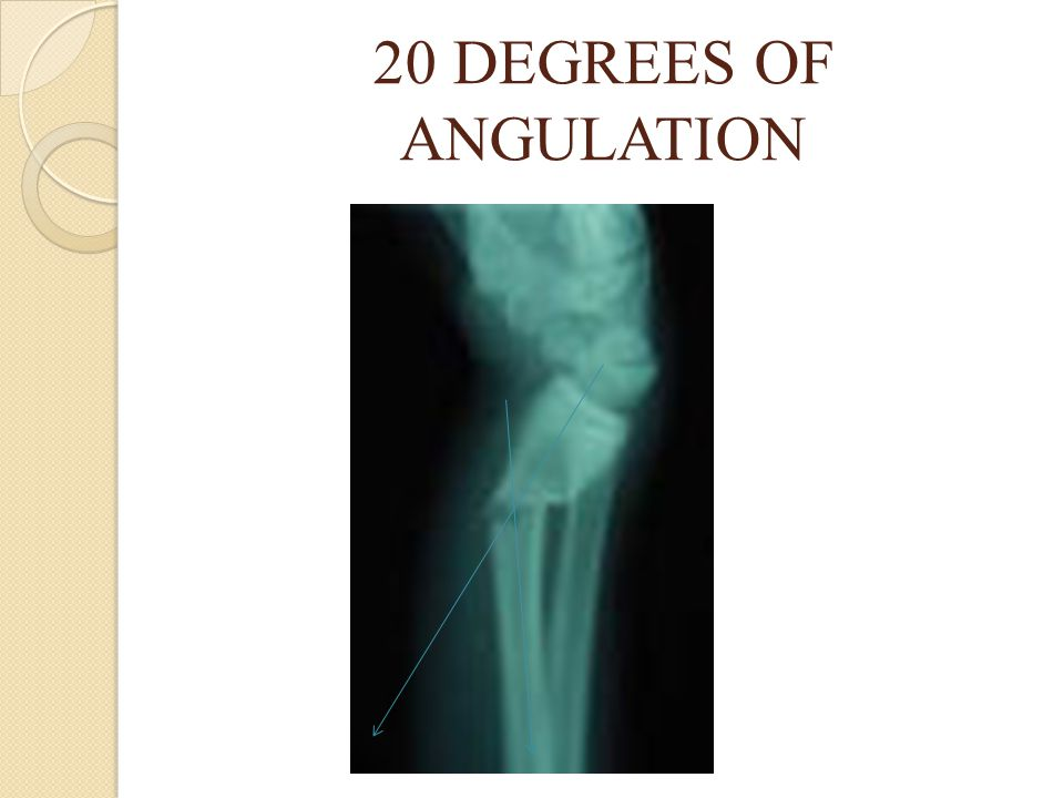 20 DEGREES OF ANGULATION