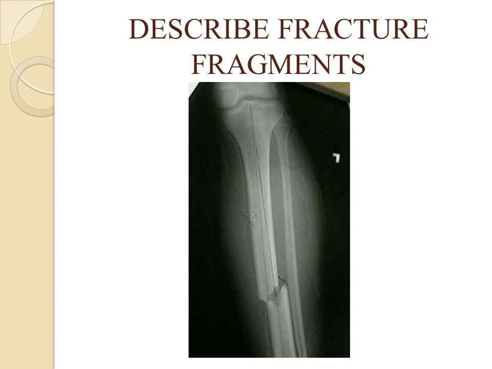 DESCRIBE FRACTURE FRAGMENTS