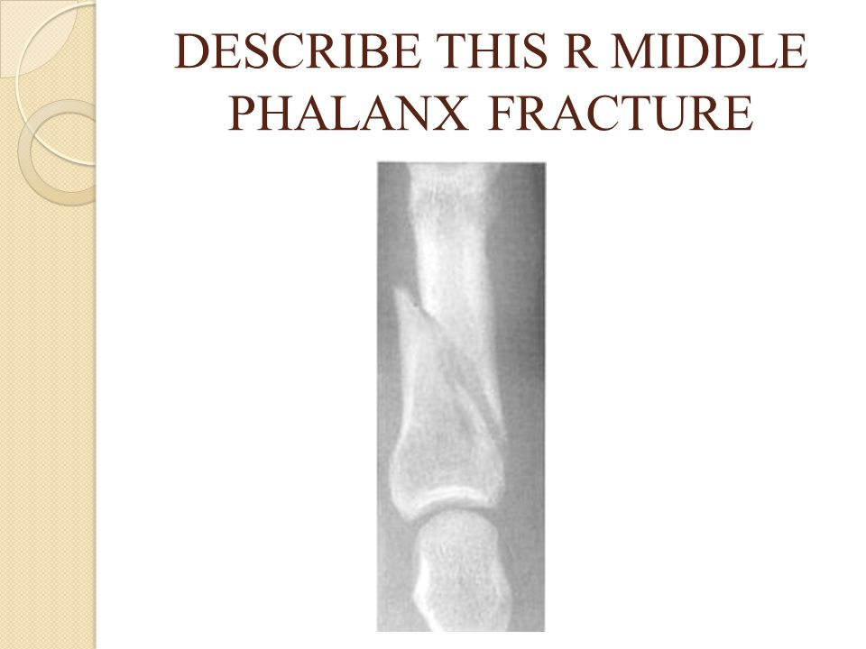 DESCRIBE THIS R MIDDLE PHALANX FRACTURE