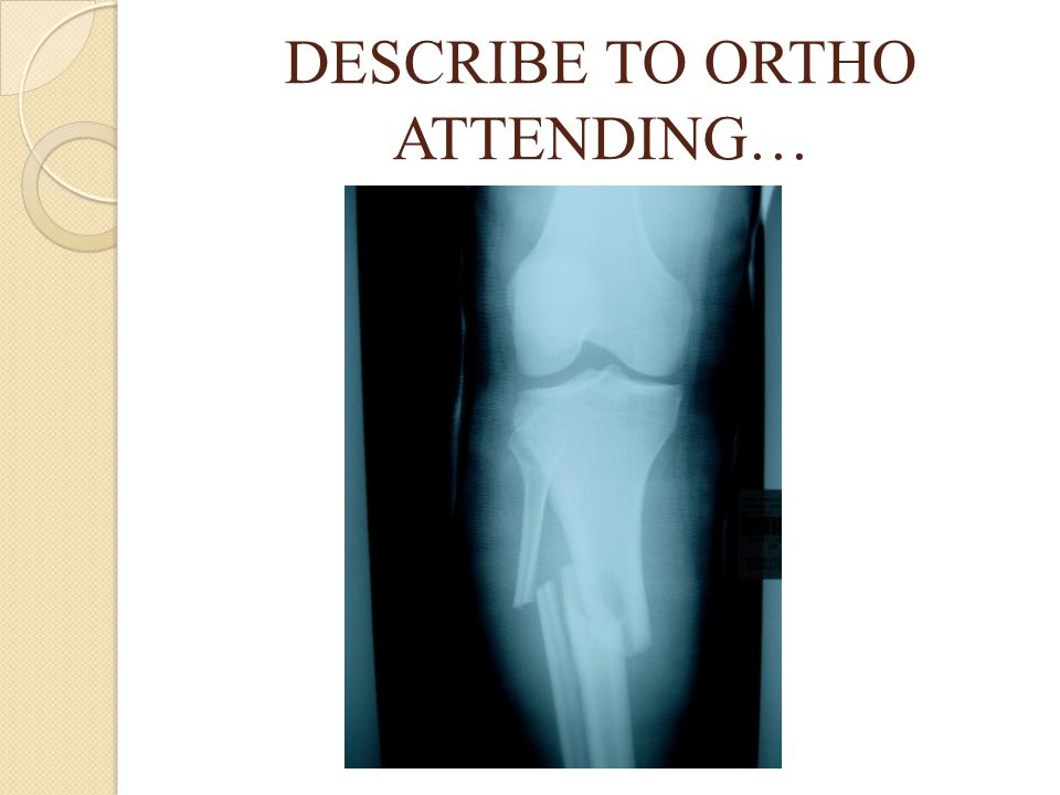 DESCRIBE TO ORTHO ATTENDING…