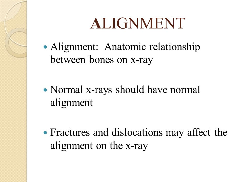 ALIGNMENT Alignment: Anatomic relationship between bones on x-ray
