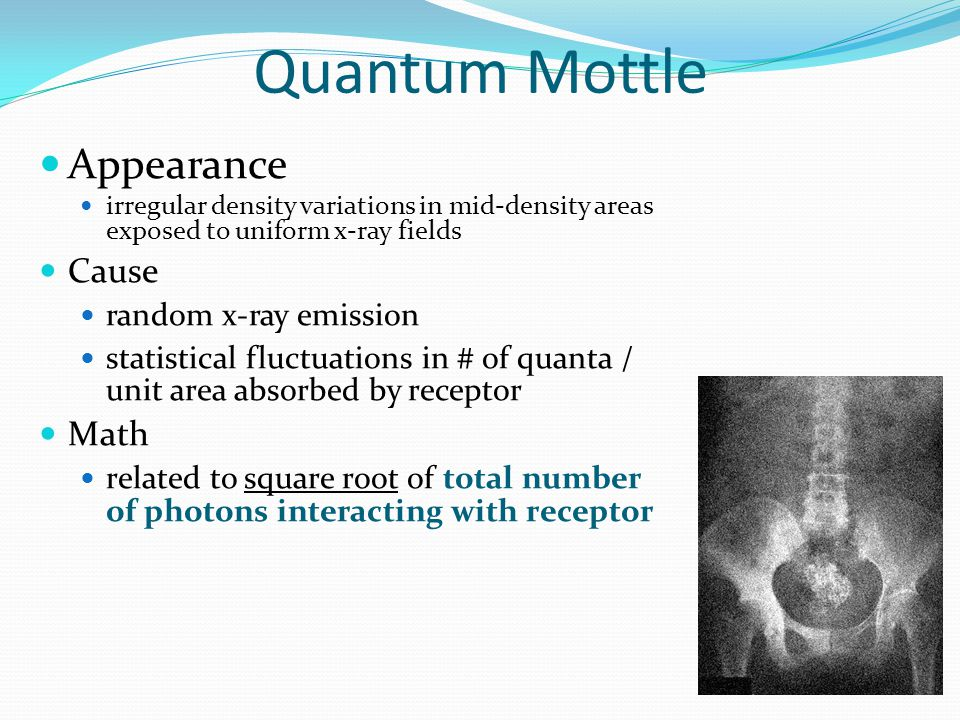 Quantum Mottle Appearance Cause Math random x-ray emission