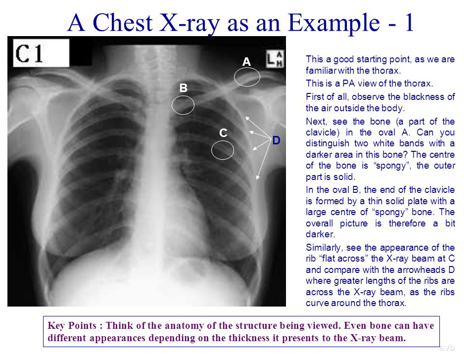 A Chest X-ray as an Example - 1