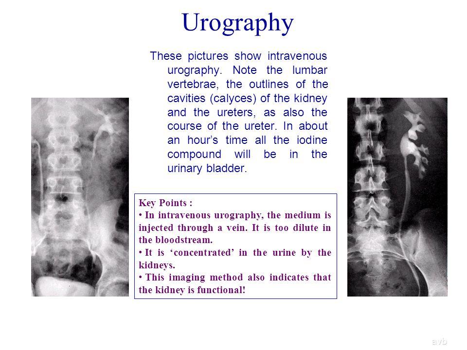 Urography