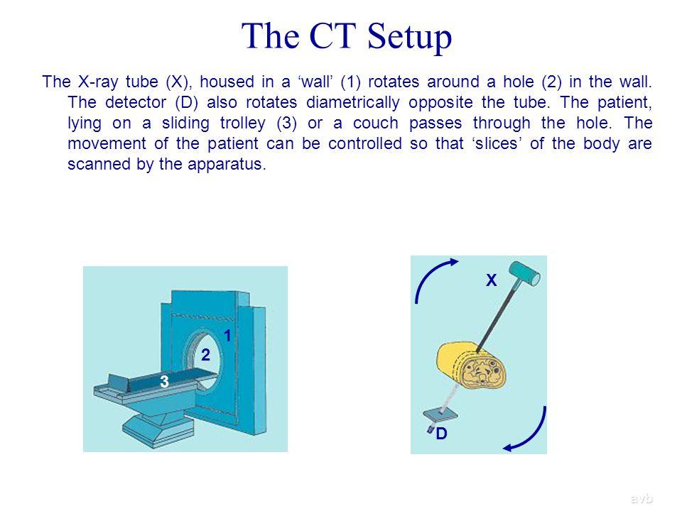 The CT Setup