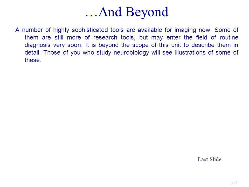 …And Beyond