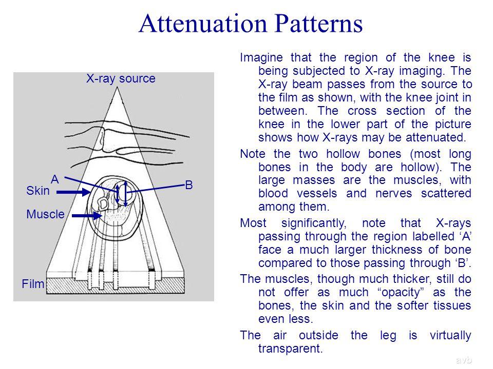 Attenuation Patterns