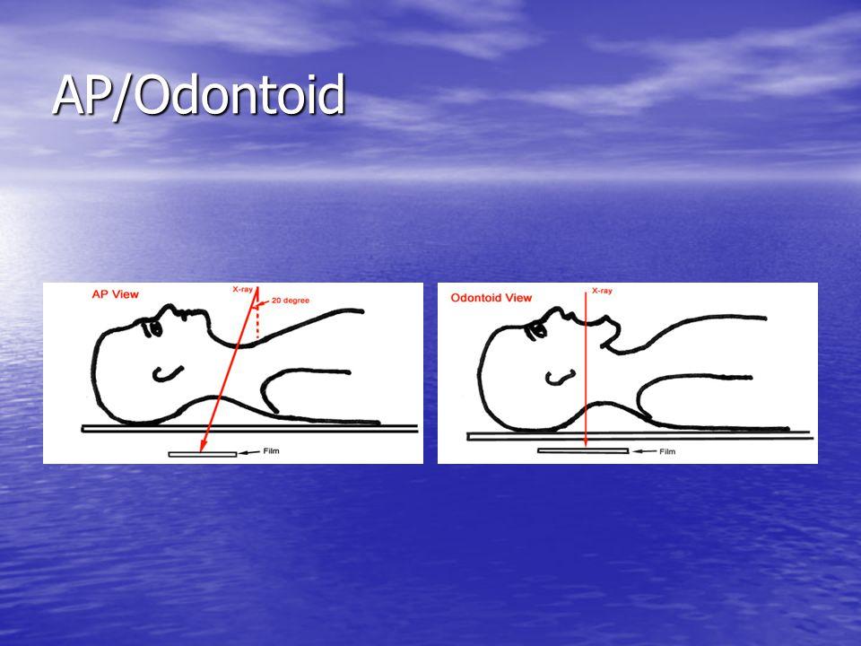 AP/Odontoid