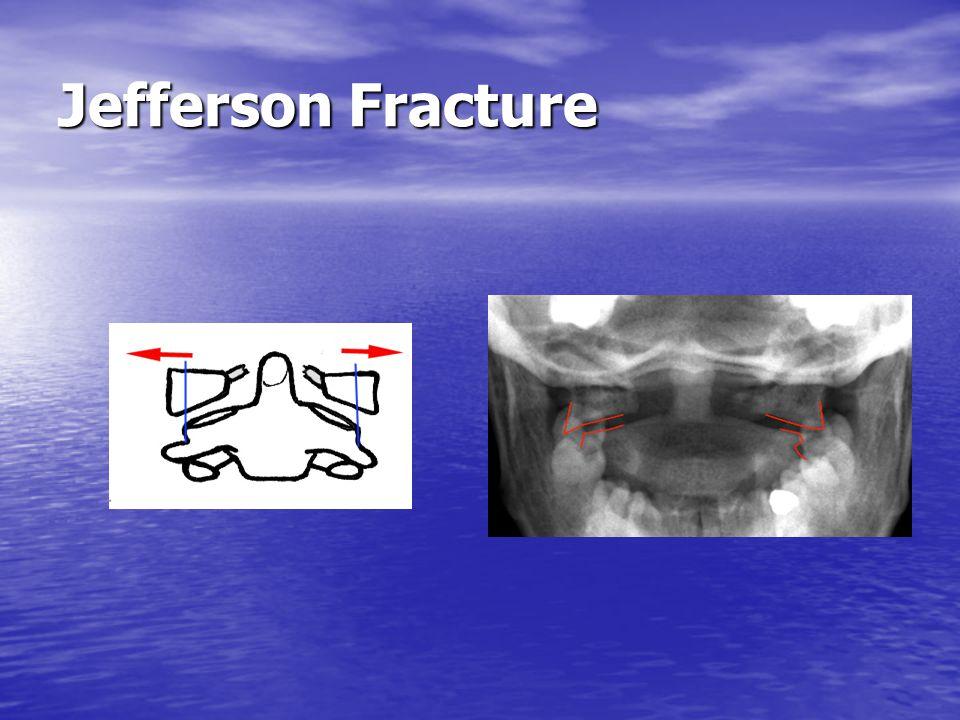 Jefferson Fracture