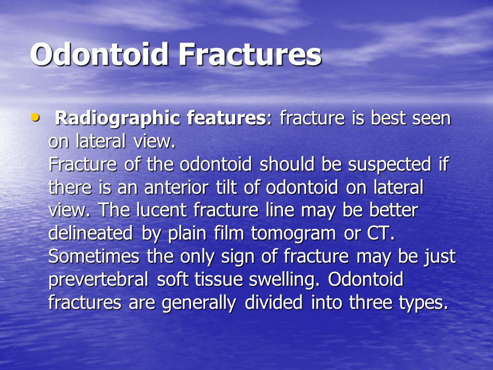 Odontoid Fractures