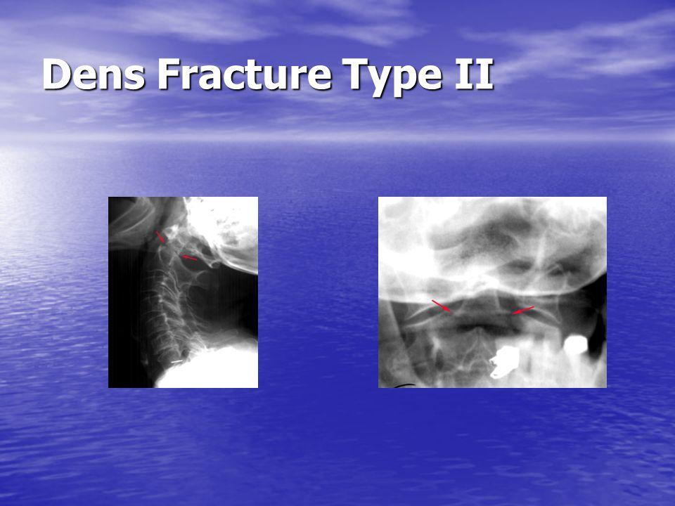 Dens Fracture Type II