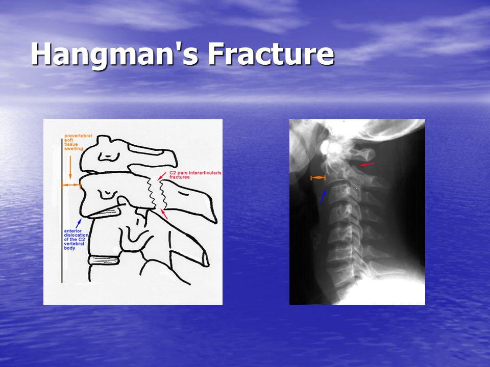 Hangman s Fracture