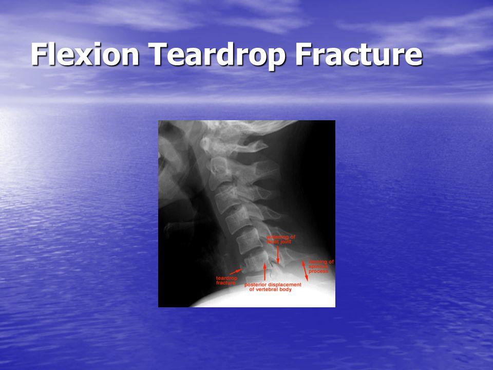 Flexion Teardrop Fracture