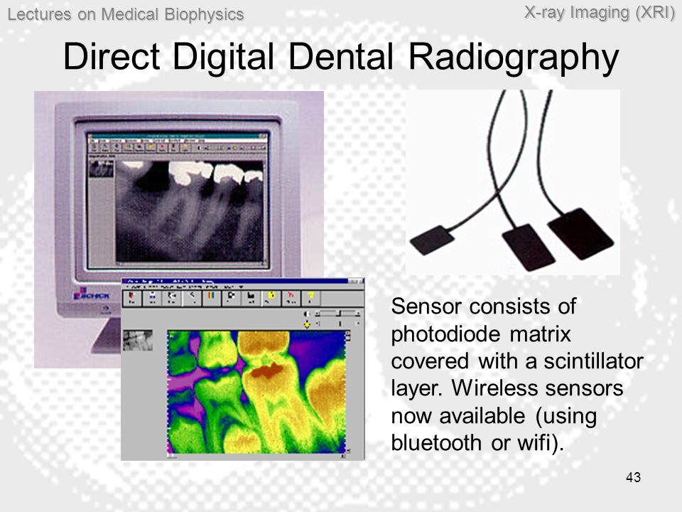 Direct Digital Dental Radiography